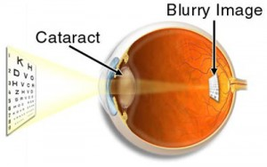 http://eyemax.ca/wp-content/uploads/2014/08/Visual_Conditions_Cataracts-wpcf_300x188.jpg