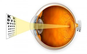 http://eyemax.ca/wp-content/uploads/2014/08/Visual_Conditions_Farsightedness-wpcf_300x188.jpg