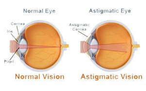 http://eyemax.ca/wp-content/uploads/2014/08/Visual_Conditions_astigmatic_eye-wpcf_300x188.jpg