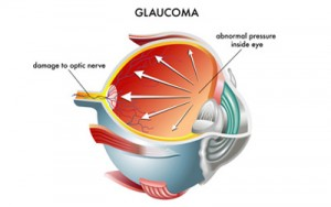http://eyemax.ca/wp-content/uploads/2014/08/Visual_Conditions_glaucoma-wpcf_300x188.jpg